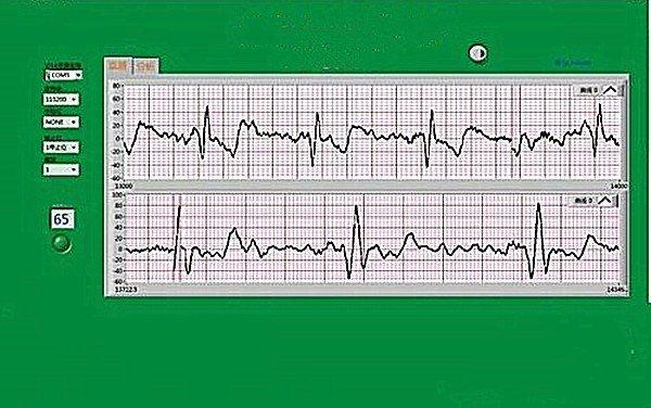 ECG Solutions Healthcare Highfive